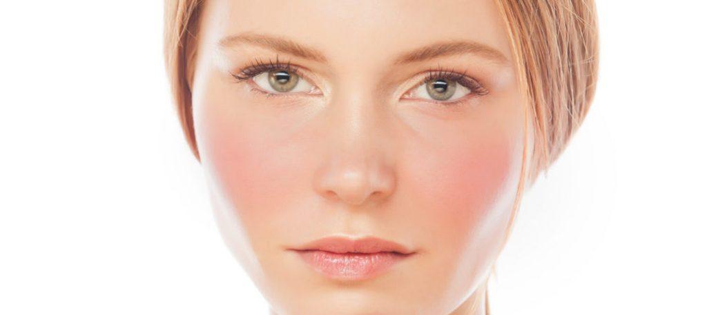 Tratamiento facial rosacea